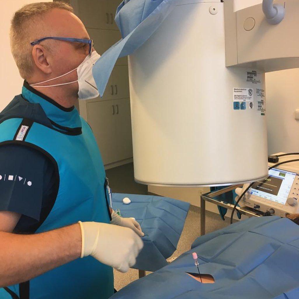 RF termoablace při osteoartróze